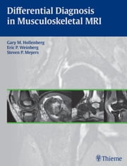 Differential Diagnosis in Musculoskeletal MRI ebook by Hollenberg, Gary M.