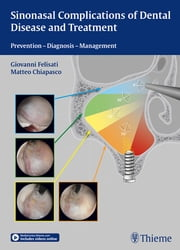 Sinonasal Complications of Dental Disease and Treatment - Prevention - Diagnosis - Management ebook by Giovanni Felisati, Matteo Chiapsco
