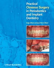 Practical Osseous Surgery in Periodontics and Implant Dentistry ebook by Serge Dibart,Jean-Pierre Dibart