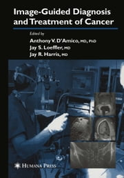 Image-Guided Diagnosis and Treatment of Cancer ebook by Anthony V. D'Amico,Jay R. Harris