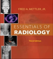 Essentials of Radiology ebook by Fred A. Mettler Jr.