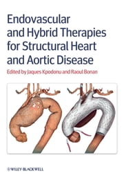 Endovascular and Hybrid Therapies for Structural Heart and Aortic Disease ebook by Jacques Kpodonu,Raoul Bonan