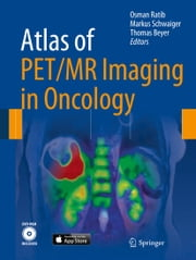 Atlas of PET/MR Imaging in Oncology ebook by Osman Ratib,Markus Schwaiger,Thomas Beyer