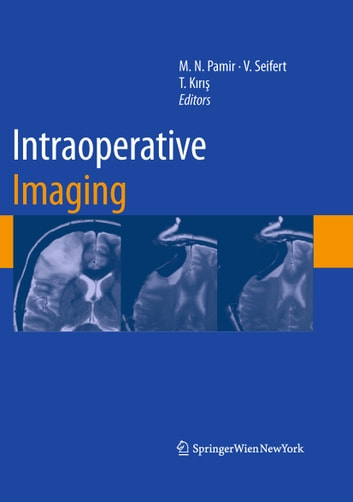 Intraoperative Imaging ebook by