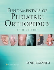 Fundamentals of Pediatric Orthopedics ebook by Lynn T. Staheli