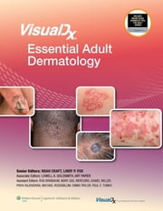 VisualDx: Essential Adult Dermatology ebook by Noah Craft,Lindy P. Fox,Lowell A. Goldsmith,Art Papier,Ron Birnbaum,Mary Gail Mercurio