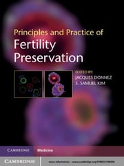 Principles and Practice of Fertility Preservation ebook by Jacques Donnez, MD PhD,S. Samuel Kim