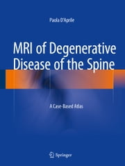 MRI of Degenerative Disease of the Spine - A Case-Based Atlas ebook by Paola D'Aprile