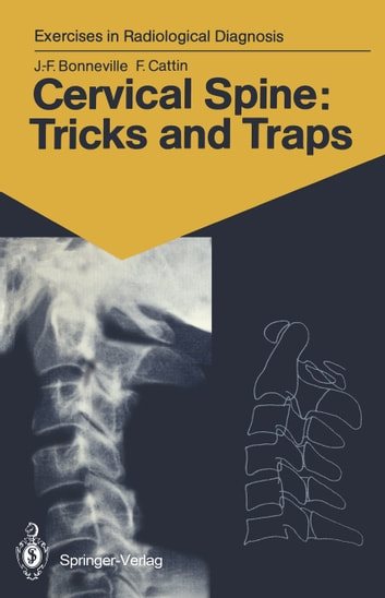 Cervical Spine: Tricks and Traps - 60 Radiological Exercises for Students and Practitioners ebook by Jean-Francois Bonneville,Francoise Cattin
