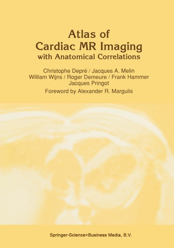 Atlas of Cardiac MR Imaging with Anatomical Correlations ebook by C. Depré,J.A. Melin,W. Wijns,R. Demeure,F. Hammer,J. Pringot