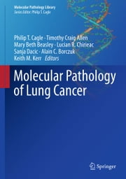 Molecular Pathology of Lung Cancer ebook by Philip T. Cagle,Timothy Craig Allen,Mary Beth Beasley,Lucian R. Chirieac,Sanja Dacic,Alain C. Borczuk,Keith M. Kerr