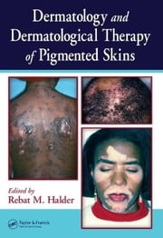 Dermatology and Dermatological Therapy of Pigmented Skins ebook by Halder, Rebat