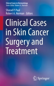 Clinical Cases in Skin Cancer Surgery and Treatment ebook by Sharad P. Paul,Robert A. Norman