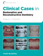Clinical Cases in Restorative and Reconstructive Dentistry ebook by Gregory J. Tarantola DDS