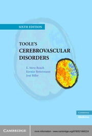 Toole's Cerebrovascular Disorders ebook by E. Steve Roach, MD,Kerstin Bettermann, MD,Jose Biller, MD