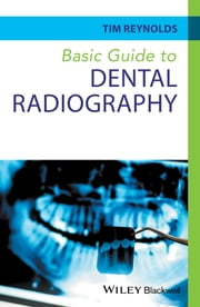 Basic Guide to Dental Radiography ebook by Tim Reynolds