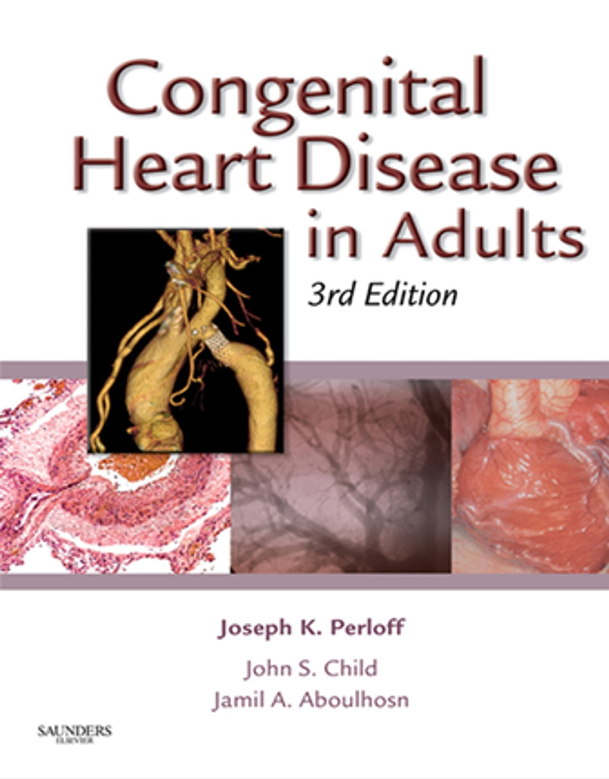 congenital heart disease in children - HD 938×1200