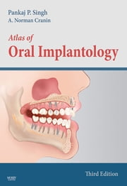 Atlas of Oral Implantology - E-Book ebook by Pankaj Singh, DDS, Diplomate ICOI,...