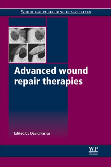 Advanced Wound Repair Therapies ebook by