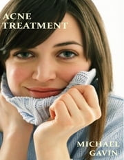 Acne Treatment: What Experts Don't Want You to Know ebook by Michael Gavin