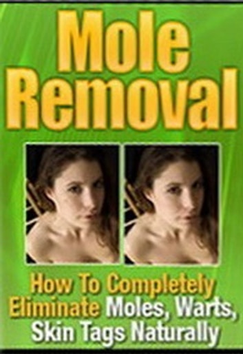 Mole Removal - How to Completely Eliminate Moles, Warts, Skin Tags Naturally ebook by Mark