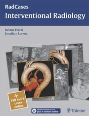 Interventional Radiology ebook by Hector Ferral,Jonathan M. Lorenz