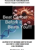 Beat Cancer Before it Beats You!!! - An Option to Test and Manage Acidity in the Body. ebook by Thomas Thottukadavil,Dr. Kalind Bakshi M.D.
