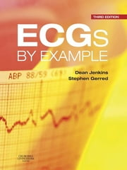 ECGs by Example ebook by Dean Jenkins,Stephen John Gerred