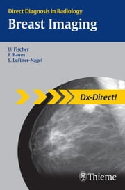 Breast Imaging ebook by Uwe Fischer,Friedemann Baum