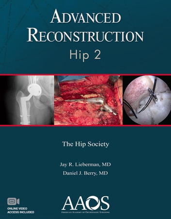 Advanced Reconstruction: Hip 2 ebook by Jay R. Leiberman, MD,Daniel J. Berry, MD