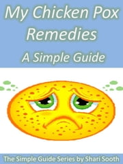 My Chicken Pox Remedies: A Simple Guide ebook by Shari Sooth