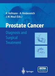 Prostate Cancer - Diagnosis and Surgical Treatment ebook by R. Hofmann,Axel Heidenreich,Judd W. Moul