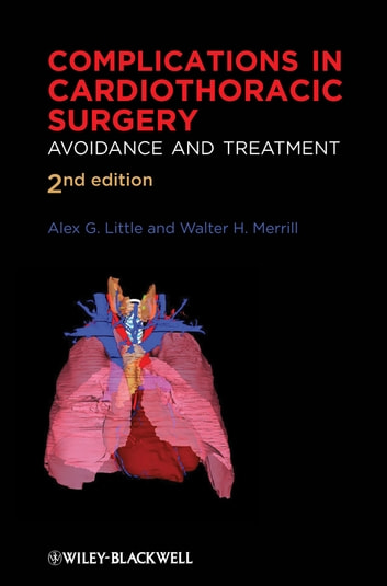 Complications in Cardiothoracic Surgery - Avoidance and Treatment ebook by