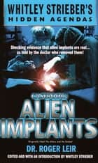 Casebook: Alien Implants ebook by Roger Leir,Whitley Streiber