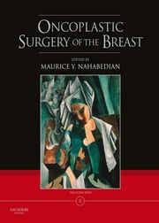 Oncoplastic Surgery of the Breast ebook by Maurice Y Nahabedian