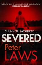 Severed - The dark and chilling crime novel you won't be able to put down ebook by Peter Laws