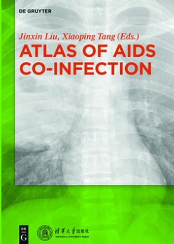 Atlas of AIDS Co-infection ebook by