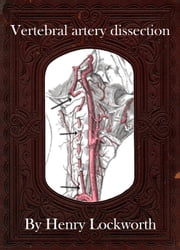 Vertebral artery dissection ebook by Henry Lockworth,Eliza Chairwood,Bradley Smith