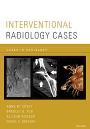 Interventional Radiology Cases ebook by Anne M. Covey,Bradley Pua,Allison Aguado,Madoff