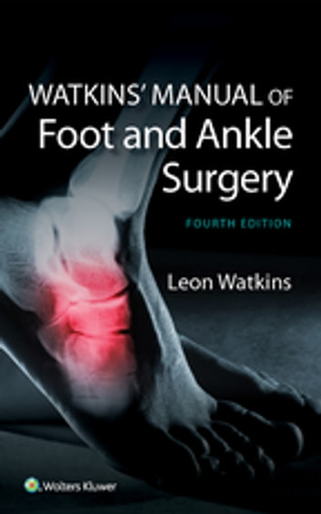 Watkins manual of foot and ankle medicine and surgery ebook by leon watkins manual of foot and ankle medicine and surgery ebook by leon watkins fandeluxe Gallery