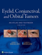 Eyelid, Conjunctival, and Orbital Tumors: An Atlas and Textbook ebook by Jerry A. Shields,Carol L. Shields