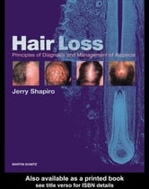 Hair Loss: Principles of Diagnosis and Management of Alopecia ebook by Shapiro, Jerry