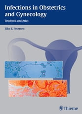 Infections in Obstetrics and Gynecology - Textbook and Atlas ebook by Eiko Petersen