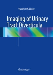 Imaging of Urinary Tract Diverticula ebook by Vladimir M. Builov