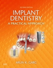 Implant Dentistry - E-Book ebook by Arun K. Garg, DMD