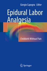 Epidural Labor Analgesia - Childbirth Without Pain ebook by Giorgio Capogna