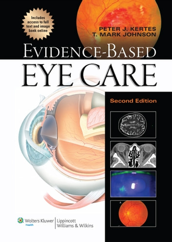 Evidence-Based Eye Care ebook by Peter J. Kertes,T. Mark Johnson