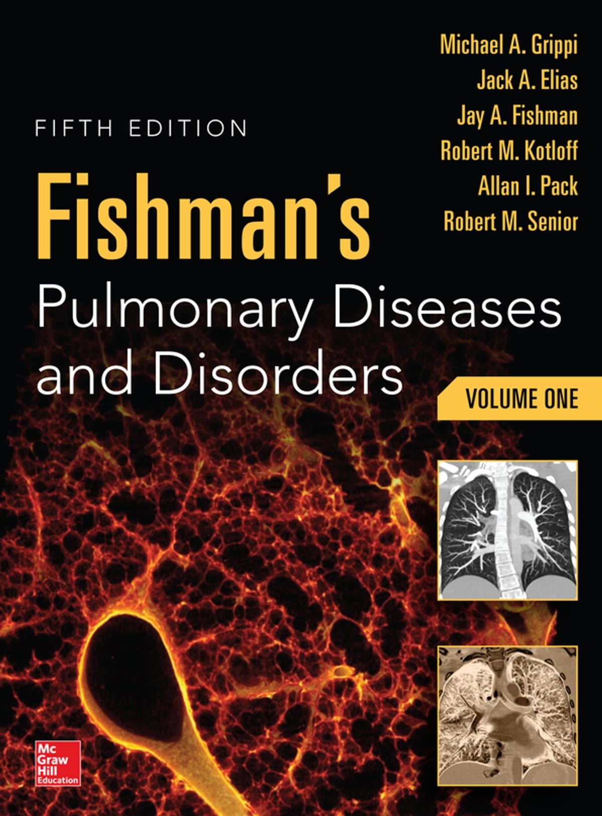 Fishman's Pulmonary Diseases and Disorders, 2-Volume Set, 5th edition ebook  by Michael A  Grippi - Rakuten Kobo