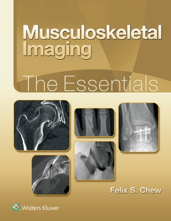 Musculoskeletal Imaging: The Requisites E-Book (Requisites in Radiology)