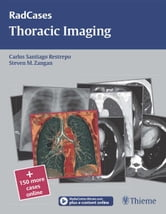 Thoracic Imaging ebook by